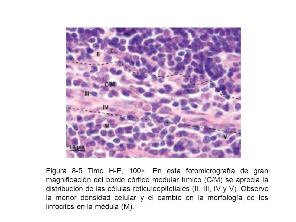 Figura 8-5 Timo H-E, 100×. En esta fotomicrografía de gran magnificación del borde córtico medular tímico (C/M) se aprecia la distribución de las célu
