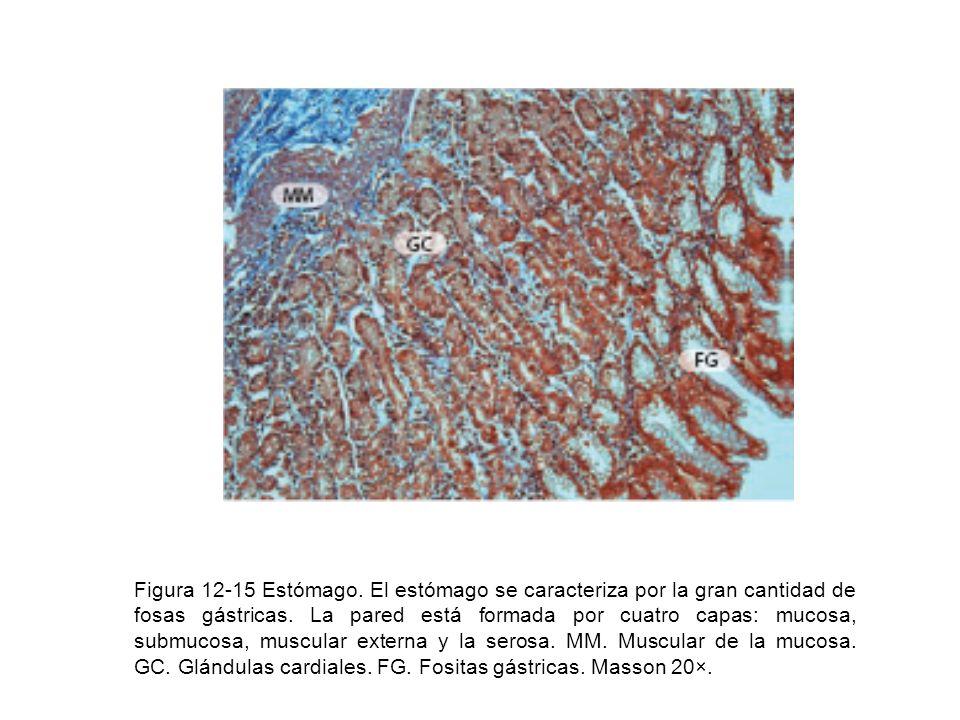 Figura 12-15 Estómago. El estómago se caracteriza por la gran cantidad de fosas gástricas. La pared está formada por cuatro capas: mucosa, submucosa,