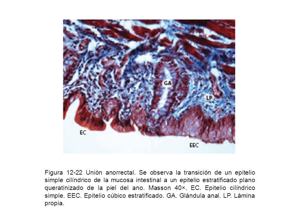 Figura 12-22 Unión anorrectal. Se observa la transición de un epitelio simple cilíndrico de la mucosa intestinal a un epitelio estratificado plano que