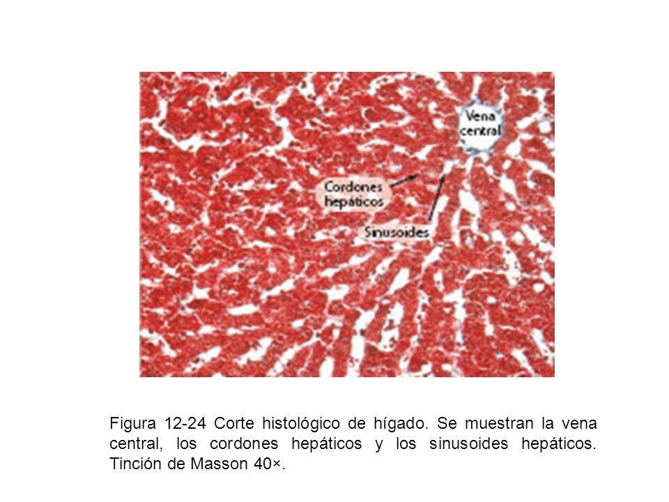 Figura 12-24 Corte histológico de hígado. Se muestran la vena central, los cordones hepáticos y los sinusoides hepáticos. Tinción de Masson 40×.
