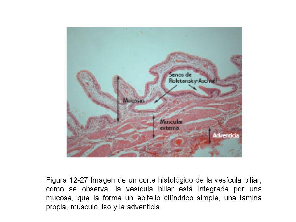 Figura 12-27 Imagen de un corte histológico de la vesícula biliar; como se observa, la vesícula biliar está integrada por una mucosa, que la forma un