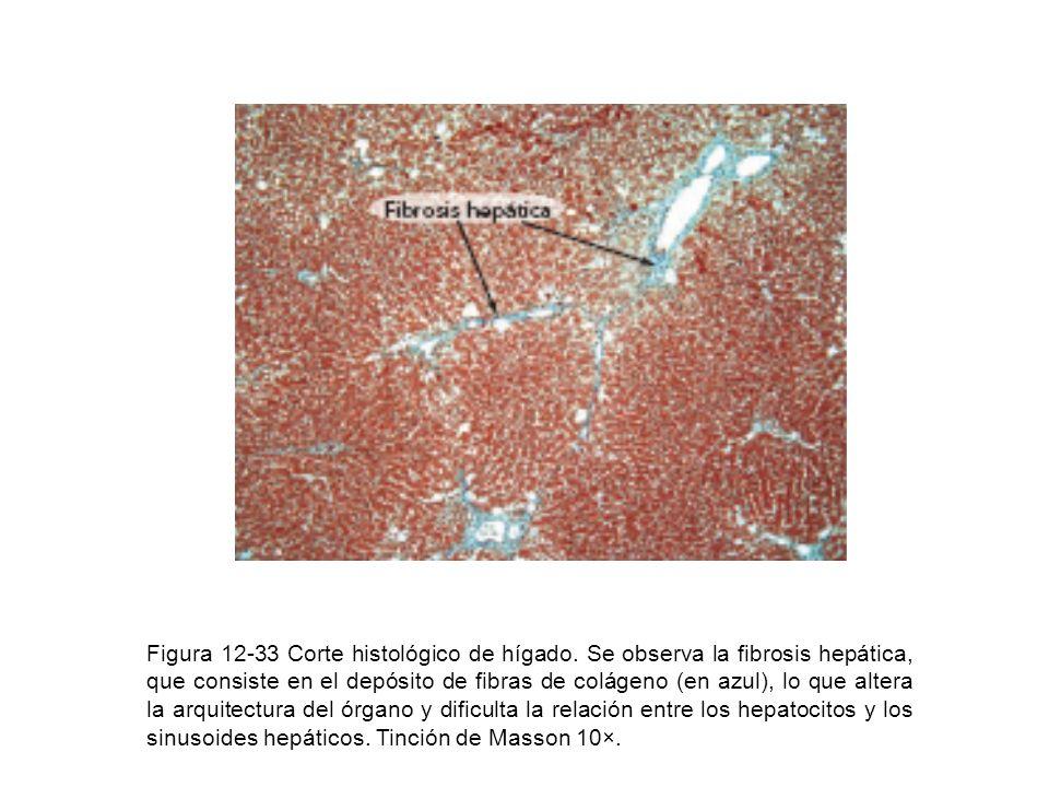 Figura 12-33 Corte histológico de hígado. Se observa la fibrosis hepática, que consiste en el depósito de fibras de colágeno (en azul), lo que altera