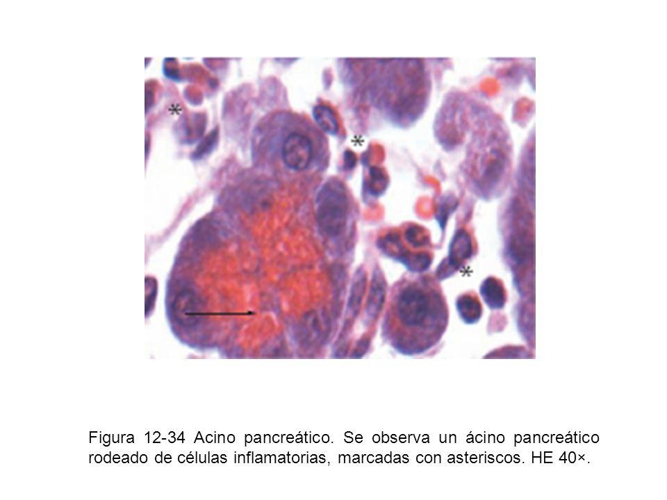 Figura 12-34 Acino pancreático. Se observa un ácino pancreático rodeado de células inflamatorias, marcadas con asteriscos. HE 40×.