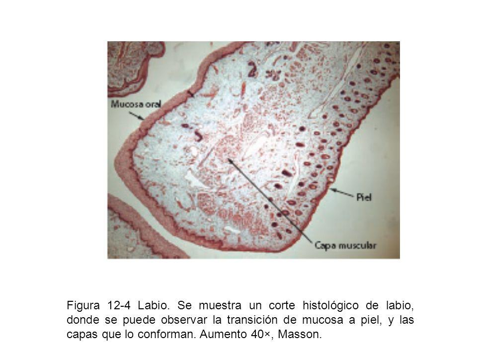 Figura 12-4 Labio. Se muestra un corte histológico de labio, donde se puede observar la transición de mucosa a piel, y las capas que lo conforman. Aum