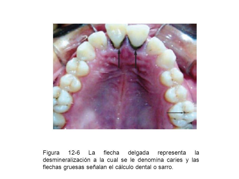 Figura 12-6 La flecha delgada representa la desmineralización a la cual se le denomina caries y las flechas gruesas señalan el cálculo dental o sarro.