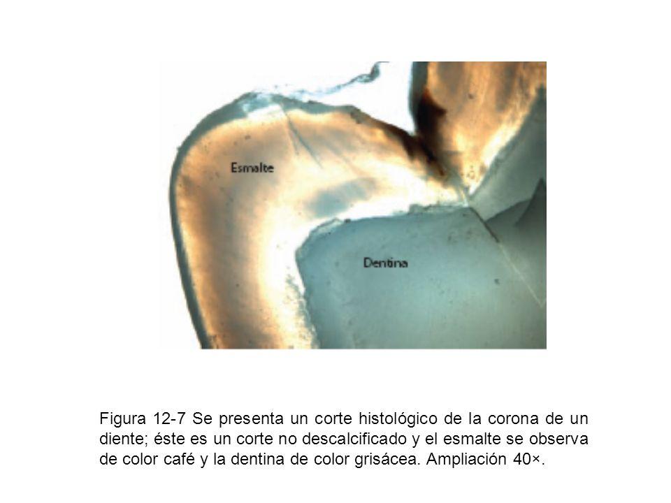 Figura 12-7 Se presenta un corte histológico de la corona de un diente; éste es un corte no descalcificado y el esmalte se observa de color café y la