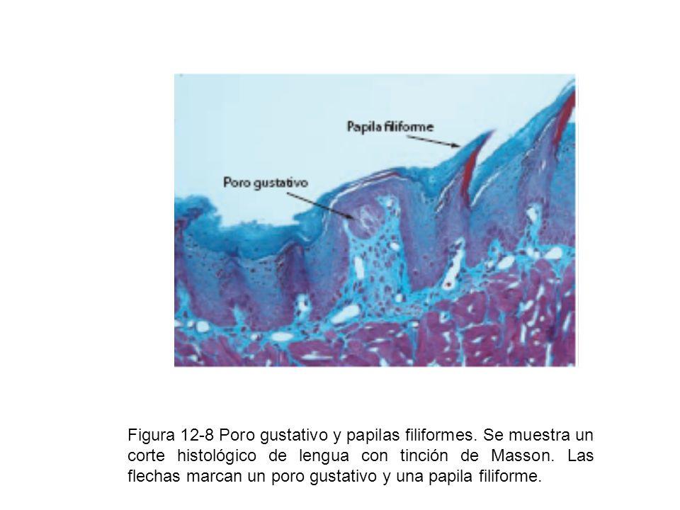 Figura 12-8 Poro gustativo y papilas filiformes. Se muestra un corte histológico de lengua con tinción de Masson. Las flechas marcan un poro gustativo