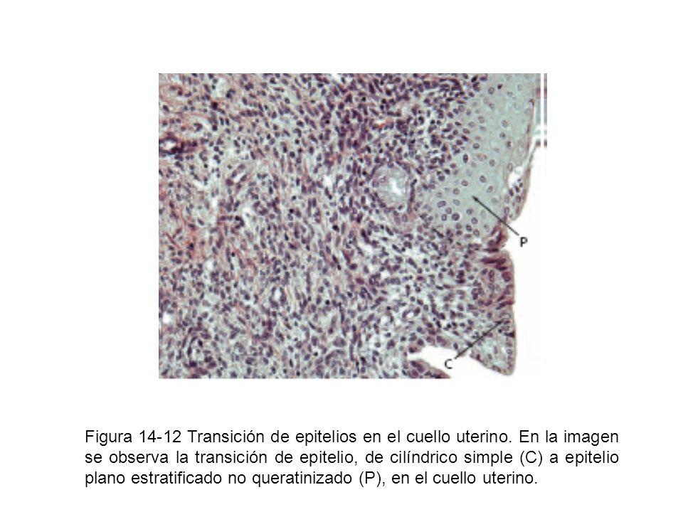 Figura 14-12 Transición de epitelios en el cuello uterino. En la imagen se observa la transición de epitelio, de cilíndrico simple (C) a epitelio plan