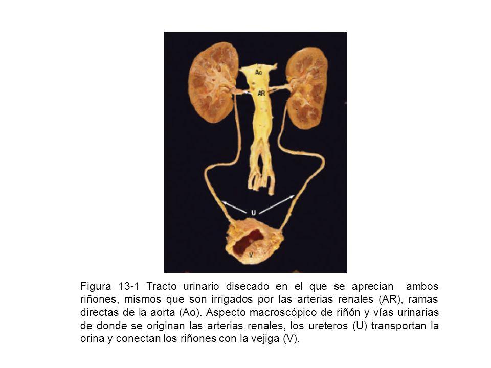 Figura 13-1 Tracto urinario disecado en el que se aprecian ambos riñones, mismos que son irrigados por las arterias renales (AR), ramas directas de la
