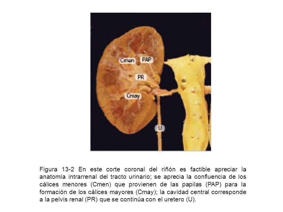 Figura 13-2 En este corte coronal del riñón es factible apreciar la anatomía intrarrenal del tracto urinario; se aprecia la confluencia de los cálices