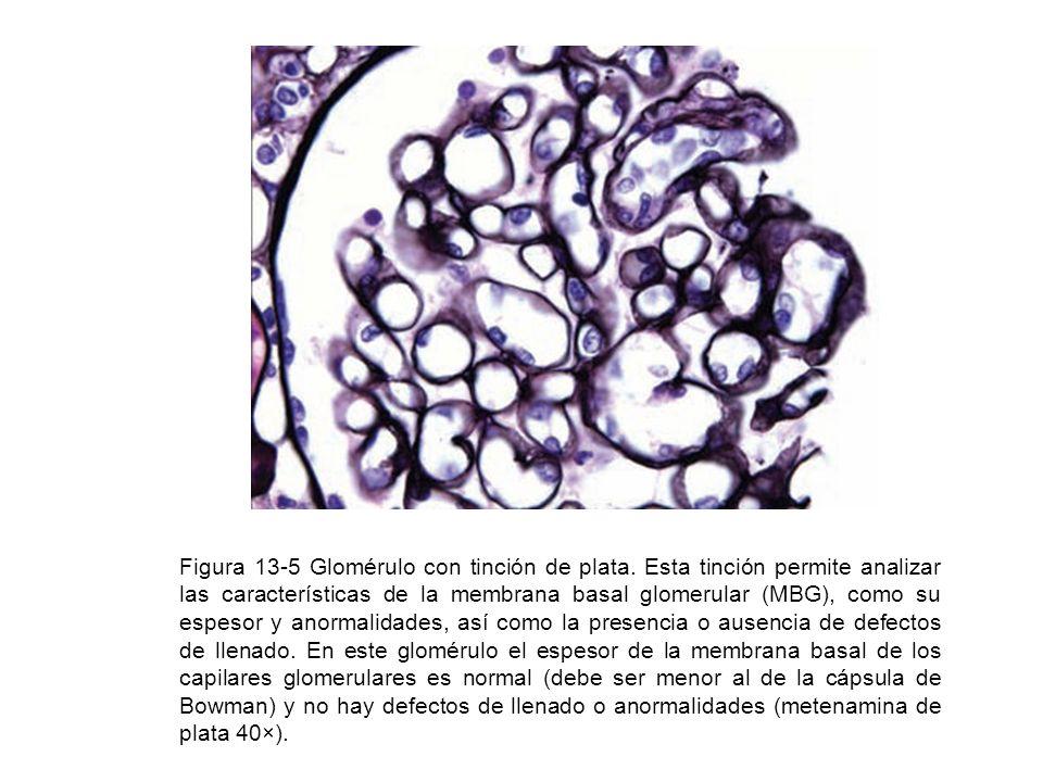 Figura 13-5 Glomérulo con tinción de plata. Esta tinción permite analizar las características de la membrana basal glomerular (MBG), como su espesor y