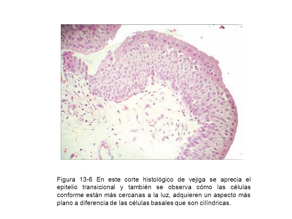 Figura 13-6 En este corte histológico de vejiga se aprecia el epitelio transicional y también se observa cómo las células conforme están más cercanas