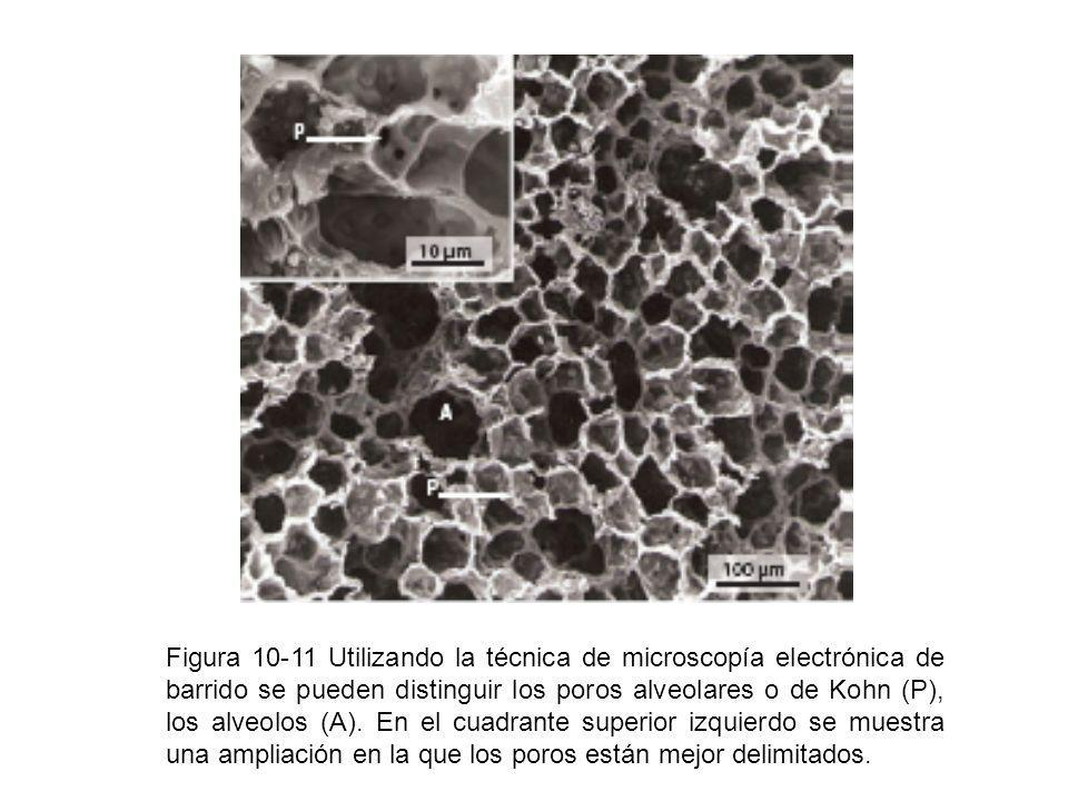 Figura 10-11 Utilizando la técnica de microscopía electrónica de barrido se pueden distinguir los poros alveolares o de Kohn (P), los alveolos (A). En