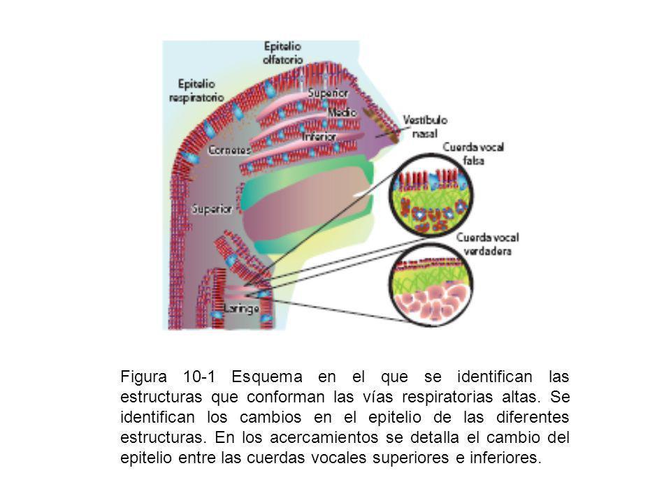 Figura 10-1 Esquema en el que se identifican las estructuras que conforman las vías respiratorias altas. Se identifican los cambios en el epitelio de