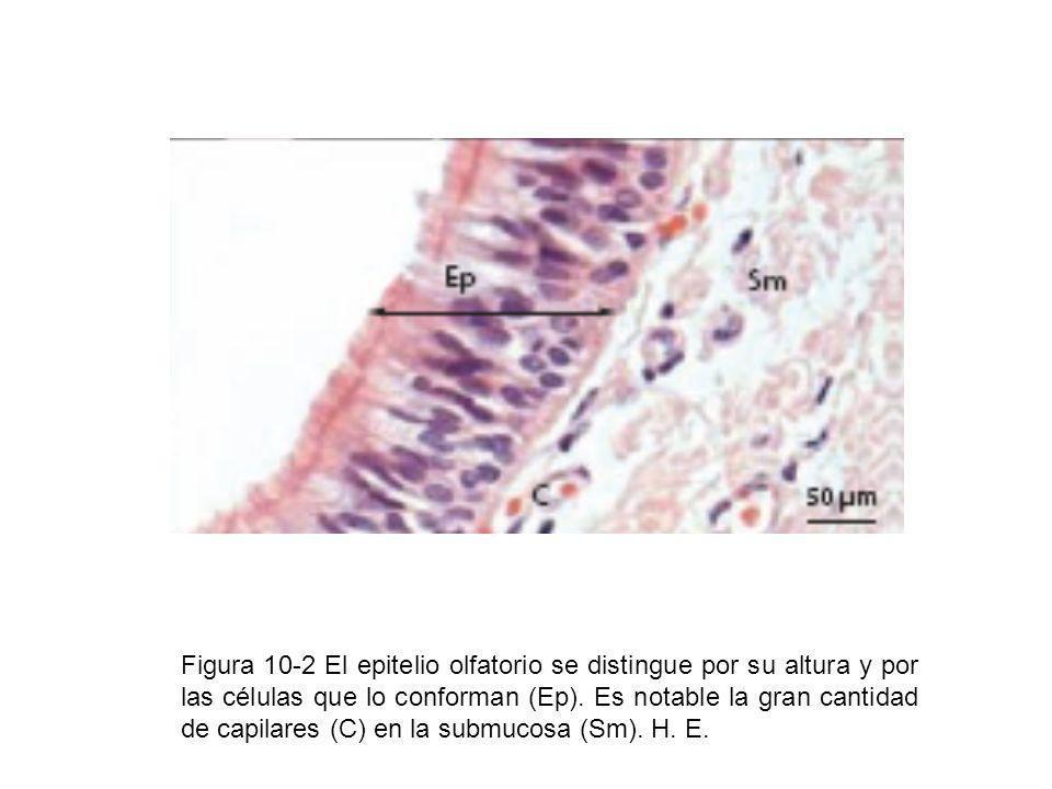 Figura 10-2 El epitelio olfatorio se distingue por su altura y por las células que lo conforman (Ep). Es notable la gran cantidad de capilares (C) en