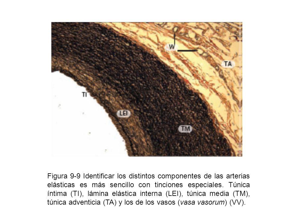 Figura 9-9 Identificar los distintos componentes de las arterias elásticas es más sencillo con tinciones especiales. Túnica íntima (TI), lámina elásti