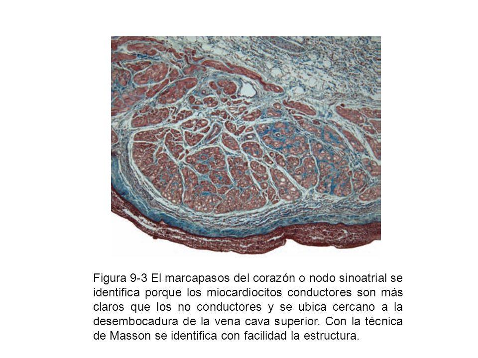 Figura 9-3 El marcapasos del corazón o nodo sinoatrial se identifica porque los miocardiocitos conductores son más claros que los no conductores y se