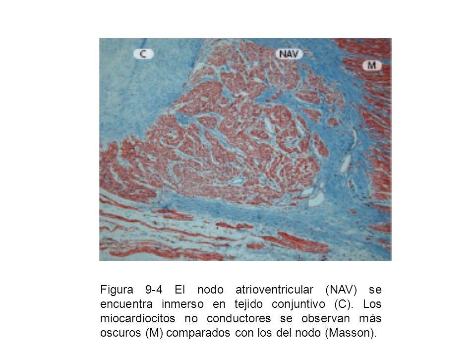 Figura 9-4 El nodo atrioventricular (NAV) se encuentra inmerso en tejido conjuntivo (C). Los miocardiocitos no conductores se observan más oscuros (M)