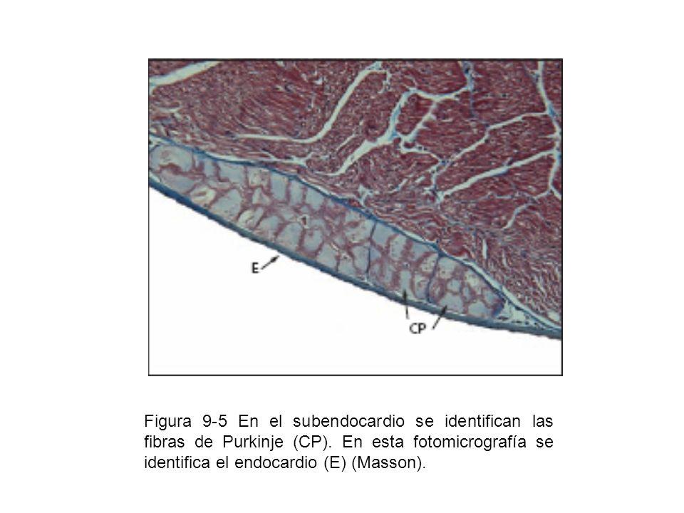 Figura 9-5 En el subendocardio se identifican las fibras de Purkinje (CP). En esta fotomicrografía se identifica el endocardio (E) (Masson).