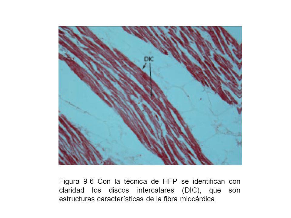 Figura 9-7 Son características de los miocardiocitos, su forma apantalonada, núcleo único y central así como los discos intercalares o intercalados.