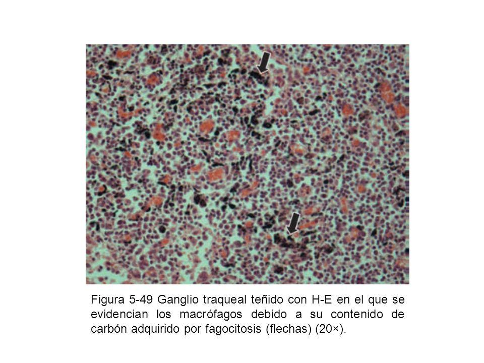 Figura 5-49 Ganglio traqueal teñido con H-E en el que se evidencian los macrófagos debido a su contenido de carbón adquirido por fagocitosis (flechas)