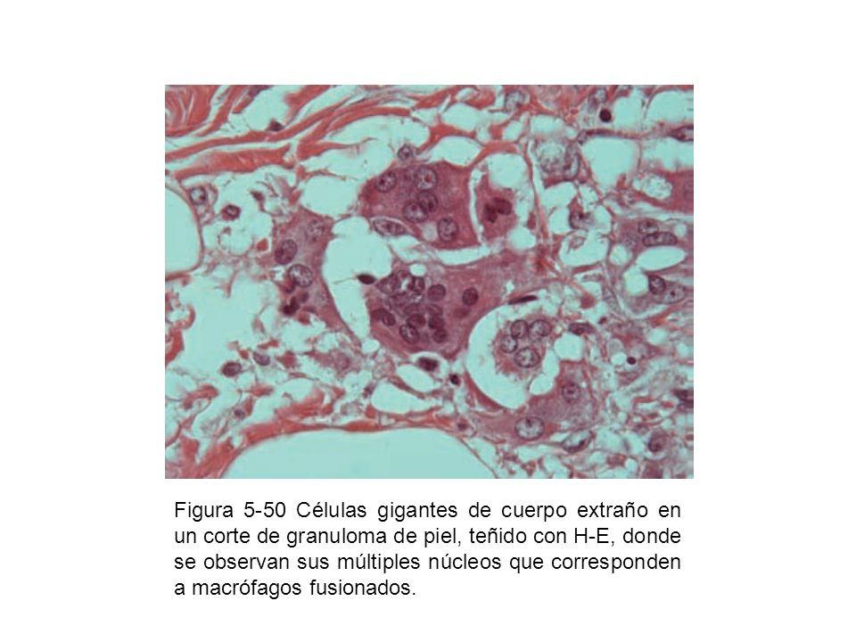 Figura 5-50 Células gigantes de cuerpo extraño en un corte de granuloma de piel, teñido con H-E, donde se observan sus múltiples núcleos que correspon