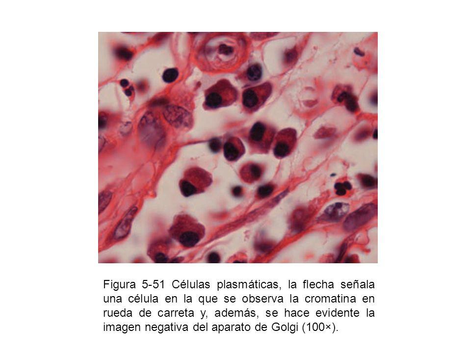 Figura 5-51 Células plasmáticas, la flecha señala una célula en la que se observa la cromatina en rueda de carreta y, además, se hace evidente la imag