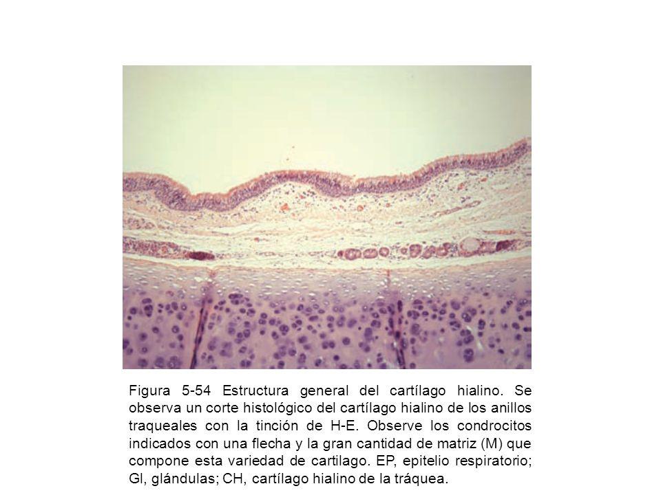 Figura 5-54 Estructura general del cartílago hialino. Se observa un corte histológico del cartílago hialino de los anillos traqueales con la tinción d