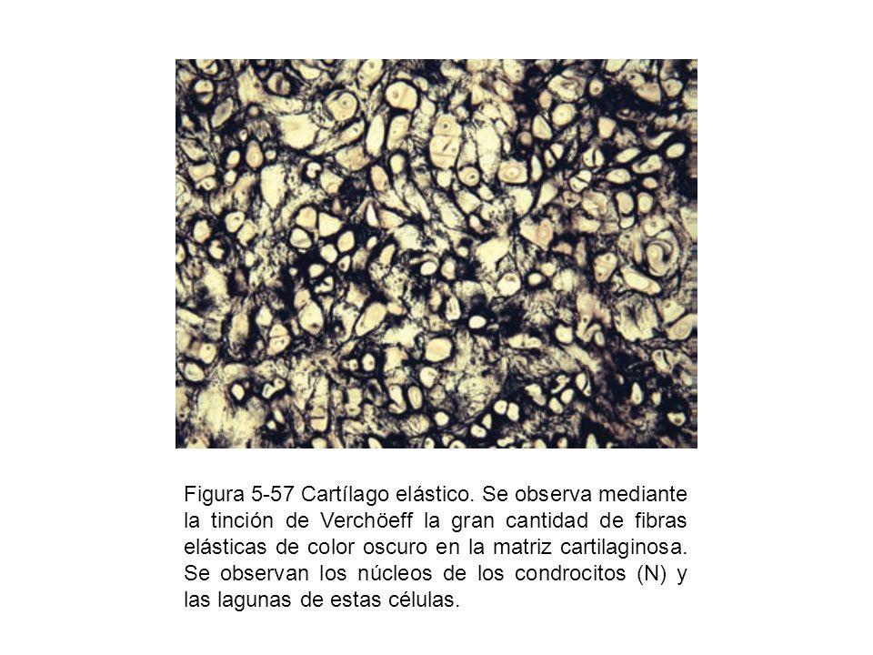 Figura 5-57 Cartílago elástico. Se observa mediante la tinción de Verchöeff la gran cantidad de fibras elásticas de color oscuro en la matriz cartilag