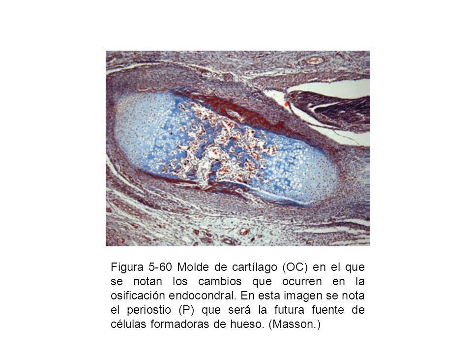 Figura 5-60 Molde de cartílago (OC) en el que se notan los cambios que ocurren en la osificación endocondral. En esta imagen se nota el periostio (P)