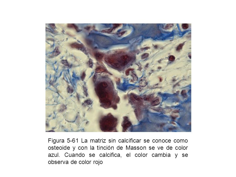 Figura 5-61 La matriz sin calcificar se conoce como osteoide y con la tinción de Masson se ve de color azul. Cuando se calcifica, el color cambia y se