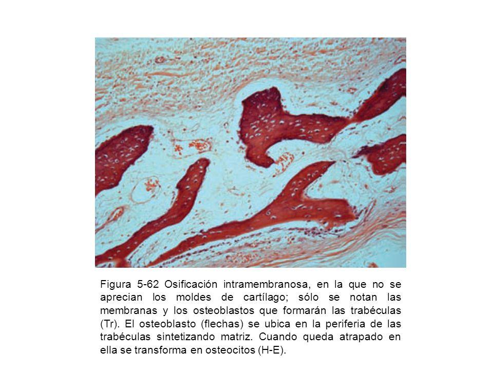 Figura 5-62 Osificación intramembranosa, en la que no se aprecian los moldes de cartílago; sólo se notan las membranas y los osteoblastos que formarán