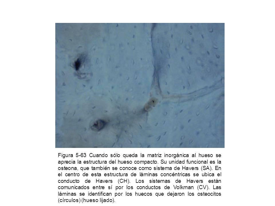 Figura 5-64 En el hueso maduro se notan las trabéculas ya calcificadas (asteriscos).