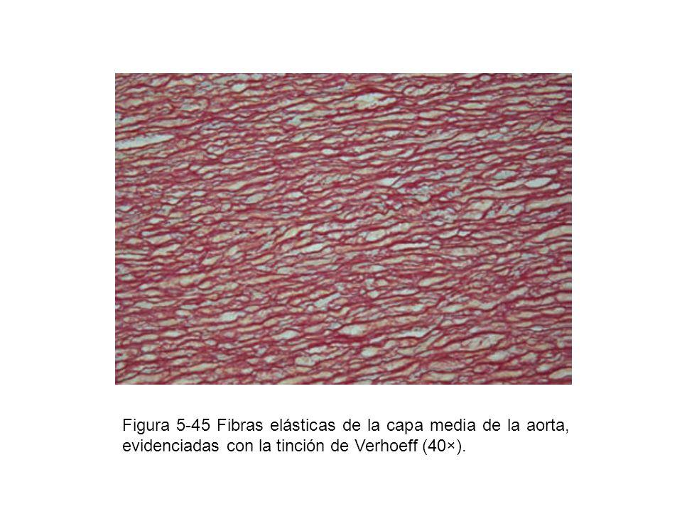 Figura 5-45 Fibras elásticas de la capa media de la aorta, evidenciadas con la tinción de Verhoeff (40×).