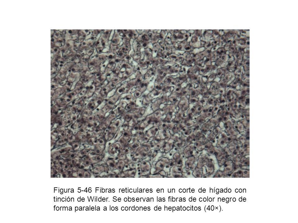 Figura 5-46 Fibras reticulares en un corte de hígado con tinción de Wilder. Se observan las fibras de color negro de forma paralela a los cordones de
