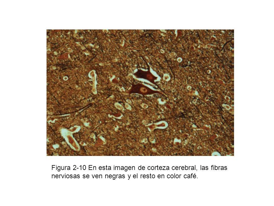 Figura 2-10 En esta imagen de corteza cerebral, las fibras nerviosas se ven negras y el resto en color café.