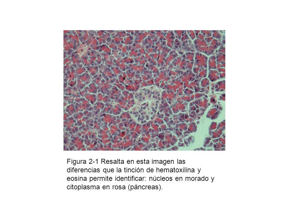 Figura 2-1 Resalta en esta imagen las diferencias que la tinción de hematoxilina y eosina permite identificar: núcleos en morado y citoplasma en rosa