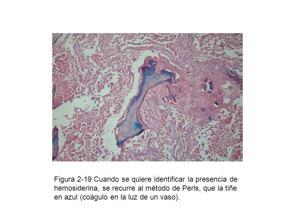 Figura 2-19 Cuando se quiere identificar la presencia de hemosiderina, se recurre al método de Perls, que la tiñe en azul (coágulo en la luz de un vas