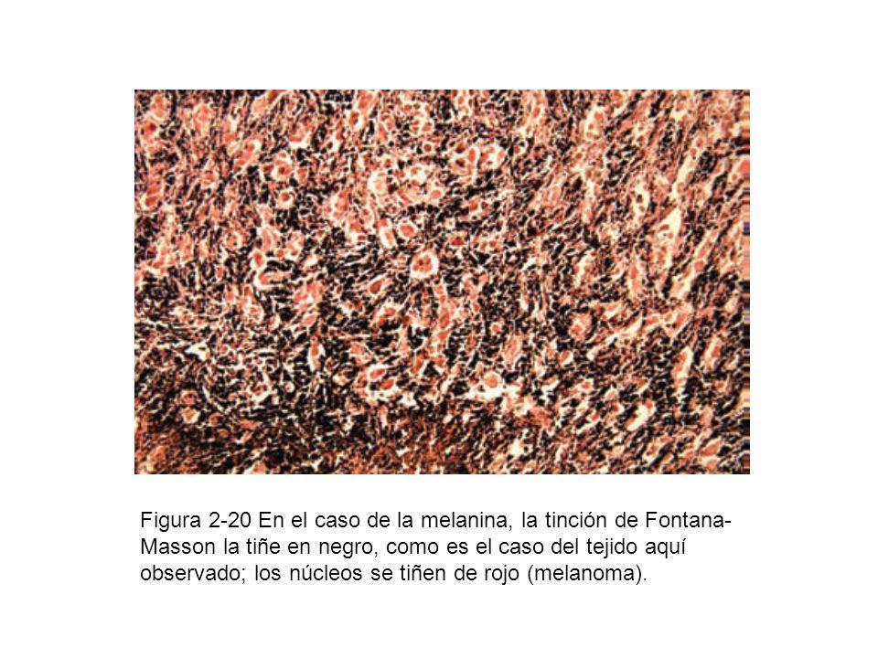 Figura 2-20 En el caso de la melanina, la tinción de Fontana- Masson la tiñe en negro, como es el caso del tejido aquí observado; los núcleos se tiñen