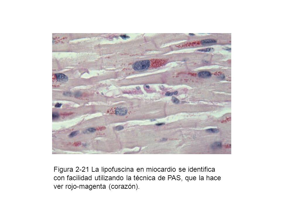 Figura 2-21 La lipofuscina en miocardio se identifica con facilidad utilizando la técnica de PAS, que la hace ver rojo-magenta (corazón).