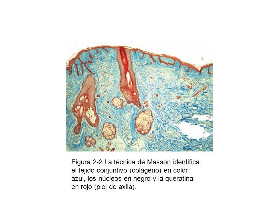 Figura 2-23 A fin de identificar a los bacilos ácido-alcohol resistentes en el pulmón, se emplea la técnica de Ziehl- Neelsen que los tiñe de rojo (pulmón).