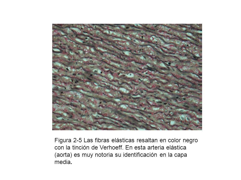 Figura 2-5 Las fibras elásticas resaltan en color negro con la tinción de Verhoeff. En esta arteria elástica (aorta) es muy notoria su identificación