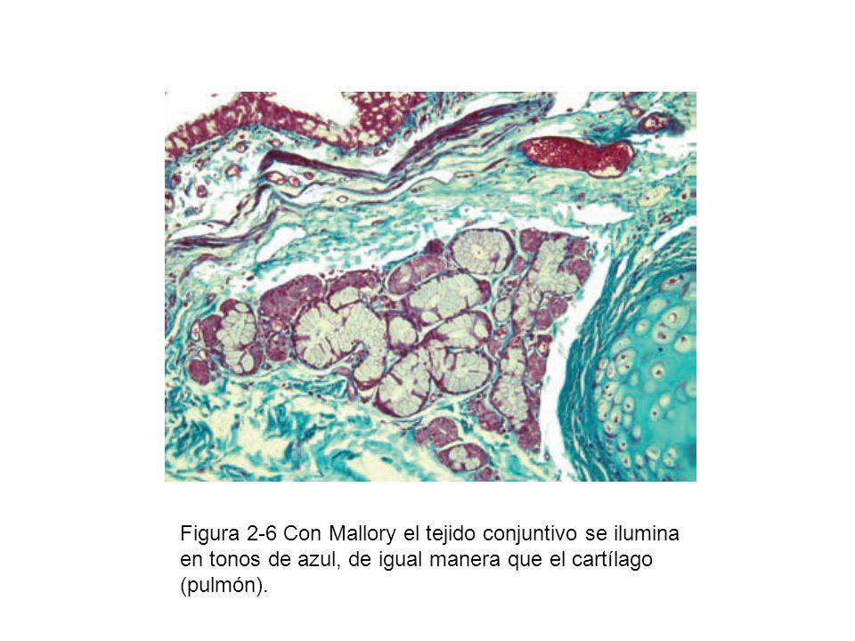 Figura 2-6 Con Mallory el tejido conjuntivo se ilumina en tonos de azul, de igual manera que el cartílago (pulmón).