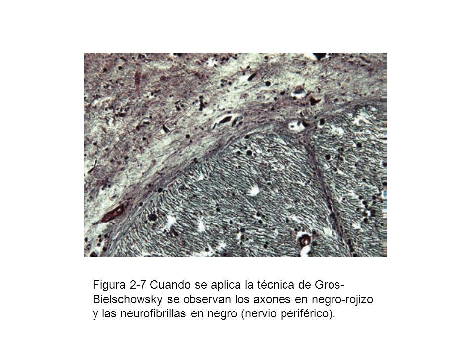 Figura 2-7 Cuando se aplica la técnica de Gros- Bielschowsky se observan los axones en negro-rojizo y las neurofibrillas en negro (nervio periférico).