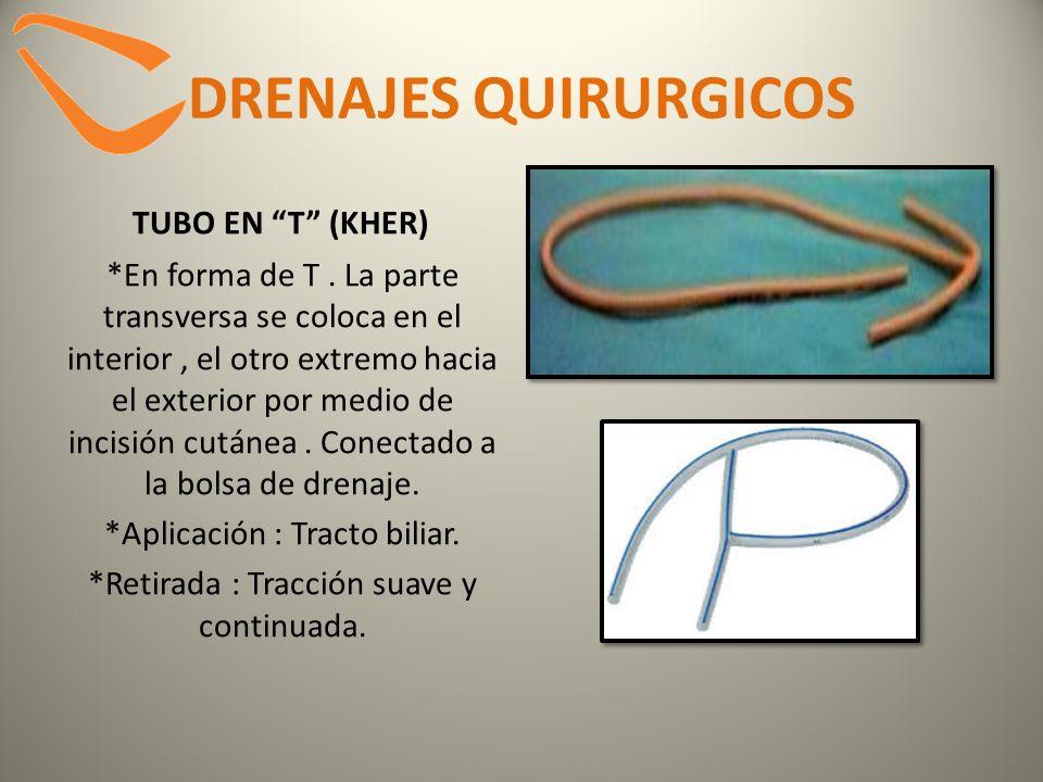 DRENAJES QUIRURGICOS TUBO EN T (KHER) *En forma de T. La parte transversa se coloca en el interior, el otro extremo hacia el exterior por medio de inc