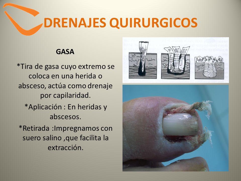 DRENAJES QUIRURGICOS GASA *Tira de gasa cuyo extremo se coloca en una herida o absceso, actúa como drenaje por capilaridad. *Aplicación : En heridas y
