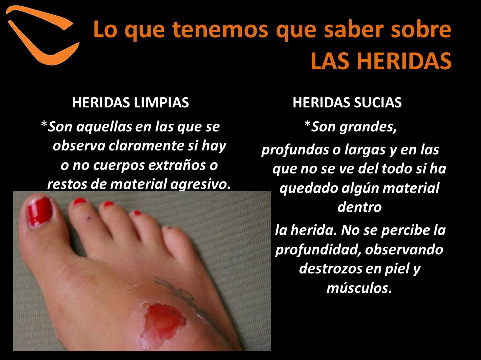 Lo que tenemos que saber sobre LAS HERIDAS TIPOS Y FORMAS *Heridas incisas : Márgenes limpios.