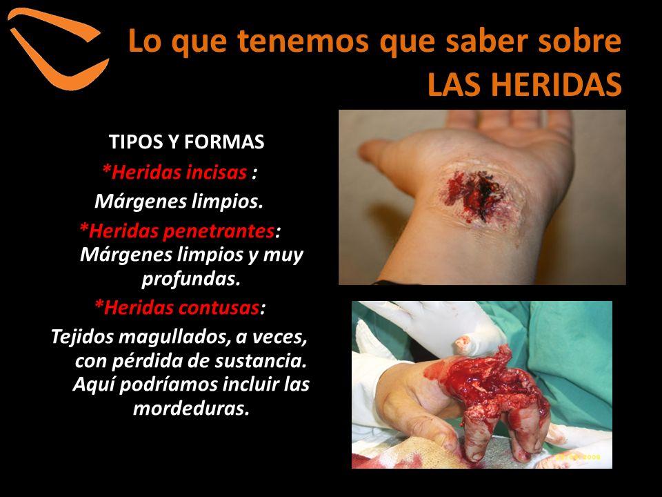 Lo que tenemos que saber sobre LAS HERIDAS TIPOS Y FORMAS *Heridas incisas : Márgenes limpios. *Heridas penetrantes: Márgenes limpios y muy profundas.