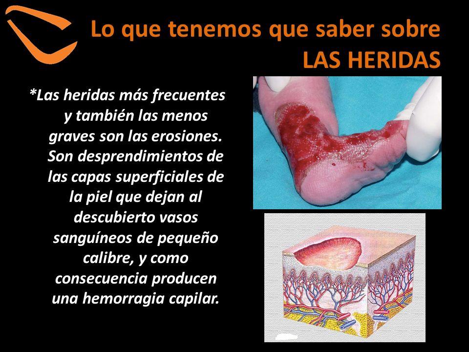 Lo que tenemos que saber sobre LAS HERIDAS *Las heridas más frecuentes y también las menos graves son las erosiones. Son desprendimientos de las capas