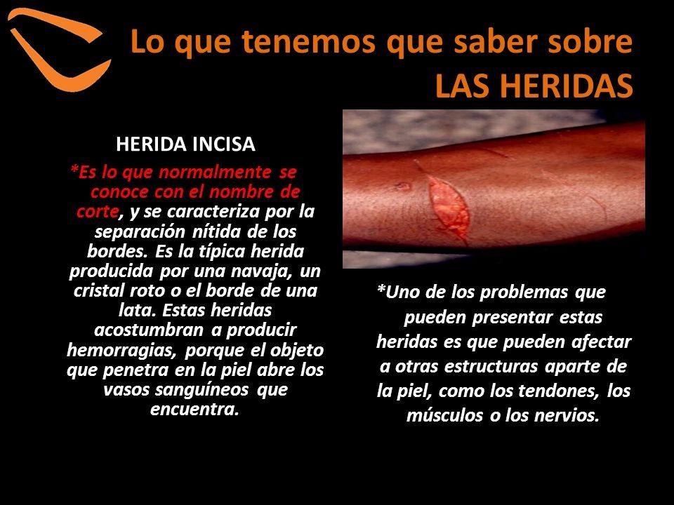 Lo que tenemos que saber sobre LAS HERIDAS HERIDA INCISA *Es lo que normalmente se conoce con el nombre de corte, y se caracteriza por la separación n